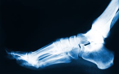 Do I Really Need Foot Surgery? Reasons Why Surgery Might Be Recommended