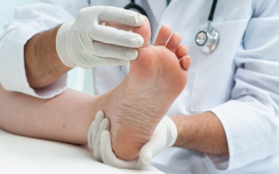Will Athlete's Foot Go Away on Its Own?