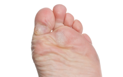 What Is the Difference Between Corns and Calluses?