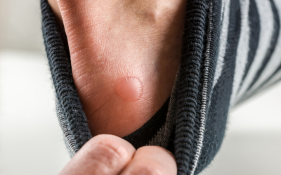 7 Ways a Foot Doctor Can Treat Painful Blisters