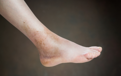Ask a Foot Doctor: How Can You Tell If a Sprain Is Serious?