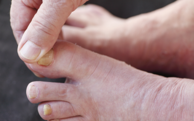 How Long Does It Take to Treat Fungal Toenails?